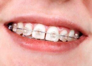 Aparat ortodontyczny - Gabinet Stomatologiczny w Radomiu