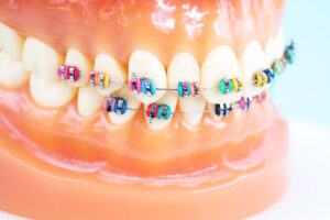 aparat ortodontyczny w Radomiu