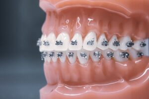 Ortodonta Radom - nowoczesny aparat na zęby