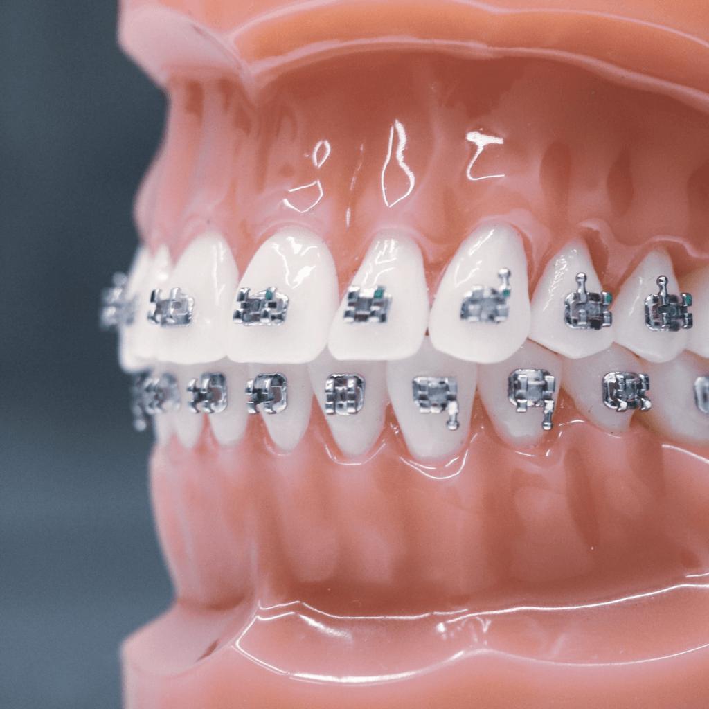 Ortodonta Radom - Zapraszamy do gabinetu Orzeł Stomatologia