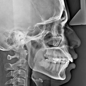 Radiologia w Orzeł Stomatologia Radom - badania zęba RTG