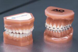 Skuteczny Ortodonta Radom