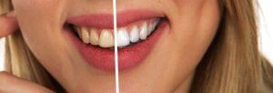 Gabinet Stomatologiczny Orzeł w Radomiu - dobry ortodonta