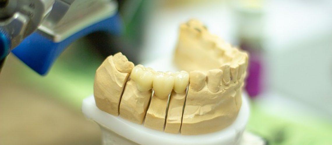 Aparat ortodontyczny w dobrej cenie - Orzeł Ortodonta Radom